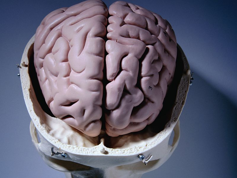 News Picture: Could AI Beat Radiologists at Spotting Bleeds in the Brain?