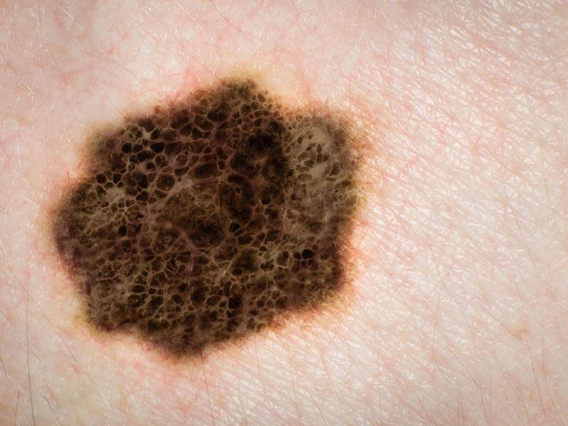 News Picture: Is Melanoma Suspected? Get 2nd Opinion From Specialist, Study Says