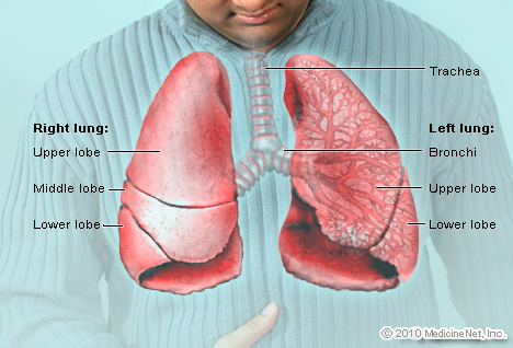 X-ray image of lungs of patient with Legionnaires' disease
