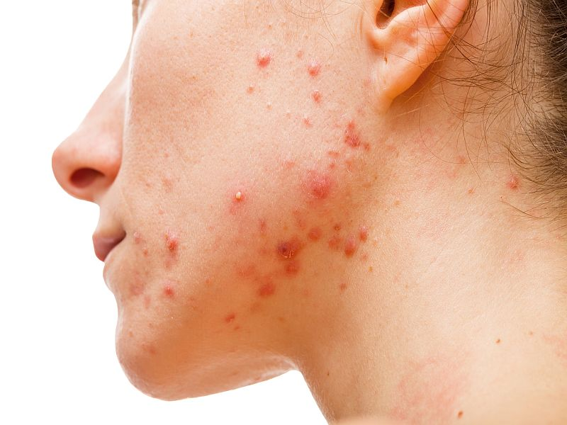 News Picture: What Foods Are Most Likely to Cause Acne Breakouts?