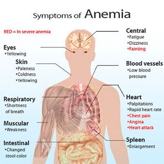 Illustration showing the symptoms of anemia.