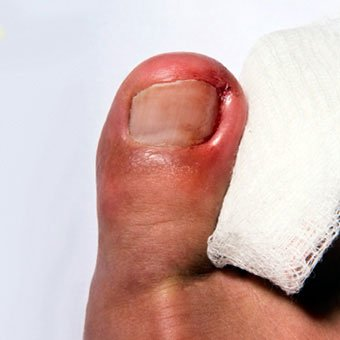 Symptoms of an ingrown toenail can include swelling, pus, and redness.