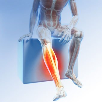 An illustration portraying leg pain caused by restless leg syndrome (RLS).