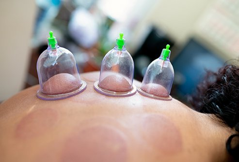 Cupping is an ancient practice in traditional Chinese medicine that has been shown by Western research to have some real benefits.
