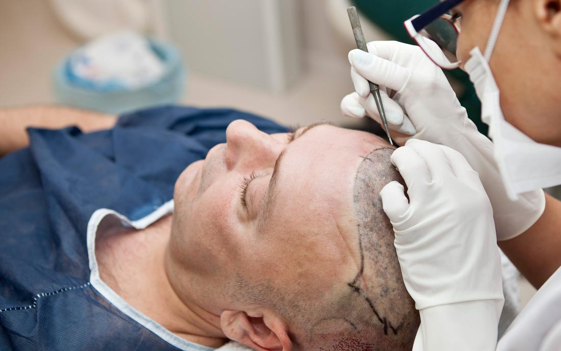 a man having a hair transplant and hopefully it will work.
