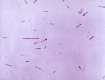 Picture of Clostridium tetani