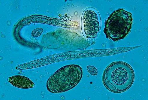 Trichnosis worm parasite.