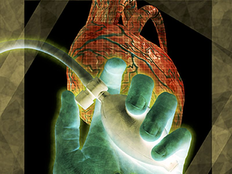 News Picture: Heart Transplants From Donors With Hepatitis C May Be Safe: Study