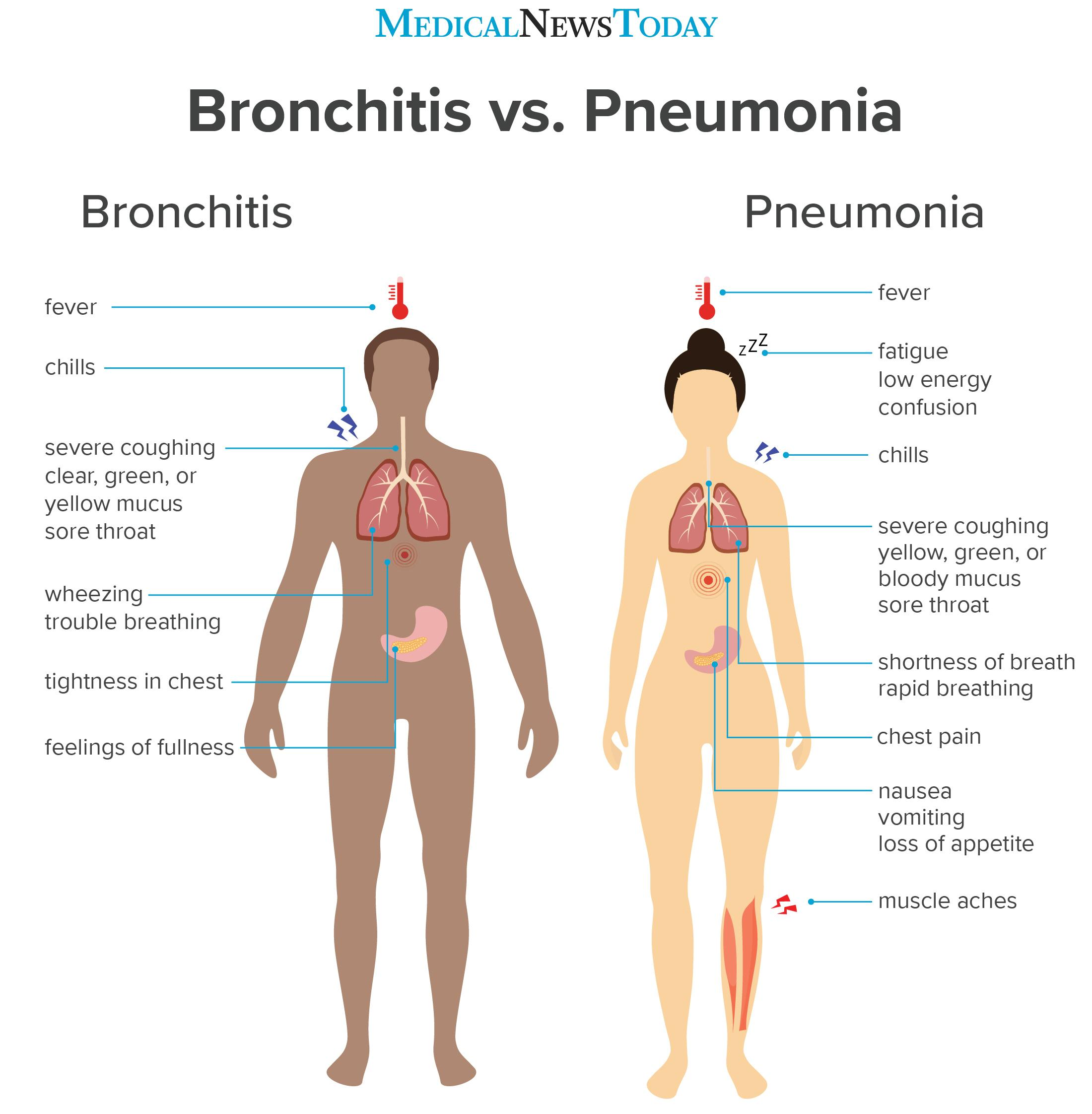 an infographic showing the symptoms of bronchitis vs Pneumonia