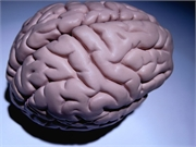 News Picture: More Doubt That Plaques in the Brain Cause Alzheimer's