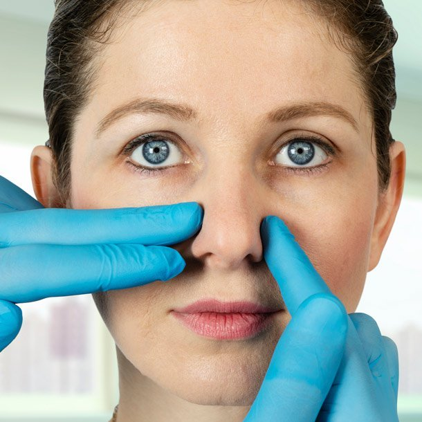 People opt for a nose job (rhinoplasty surgery) for various reasons. They might want to straighten a broken nose that healed wrong, fix a breathing problem, or just have a less-prominent snout in selfies.
