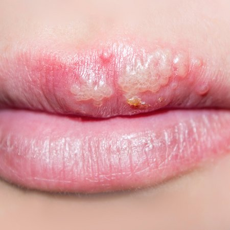 Picture of cold sores