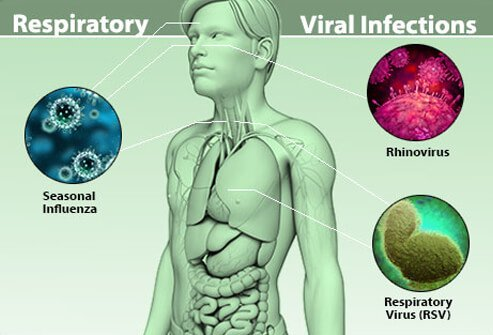 Picture of Respiratory Viral Infections