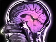 News Picture: Study Might Point Alzheimer's Research in Whole New Direction