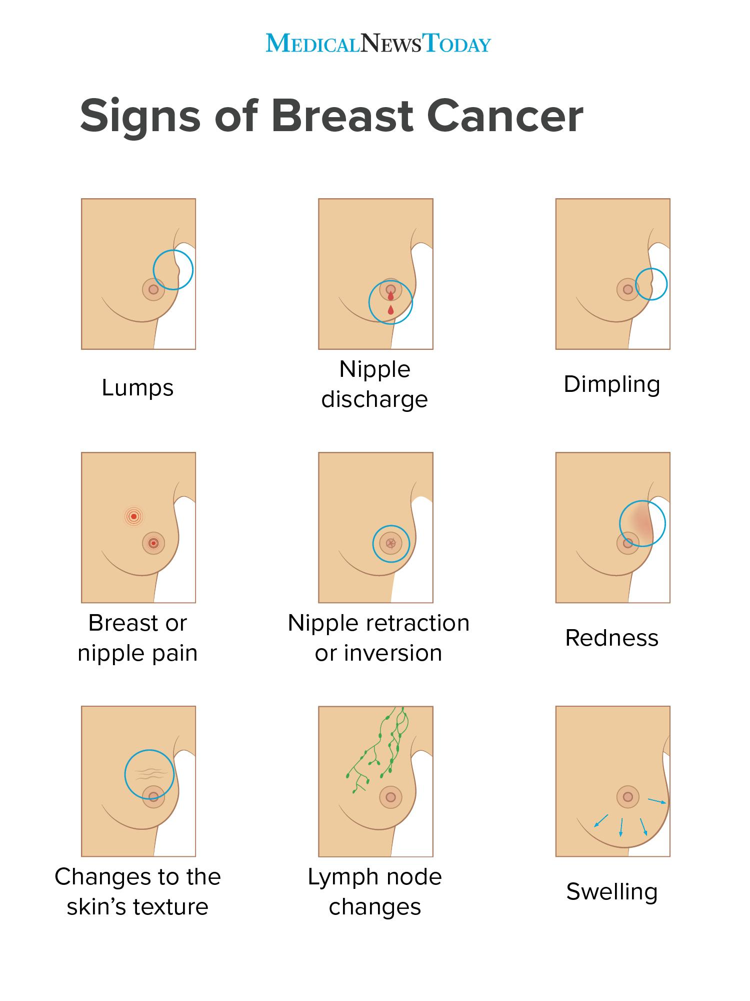 signs of breast cancer infographic