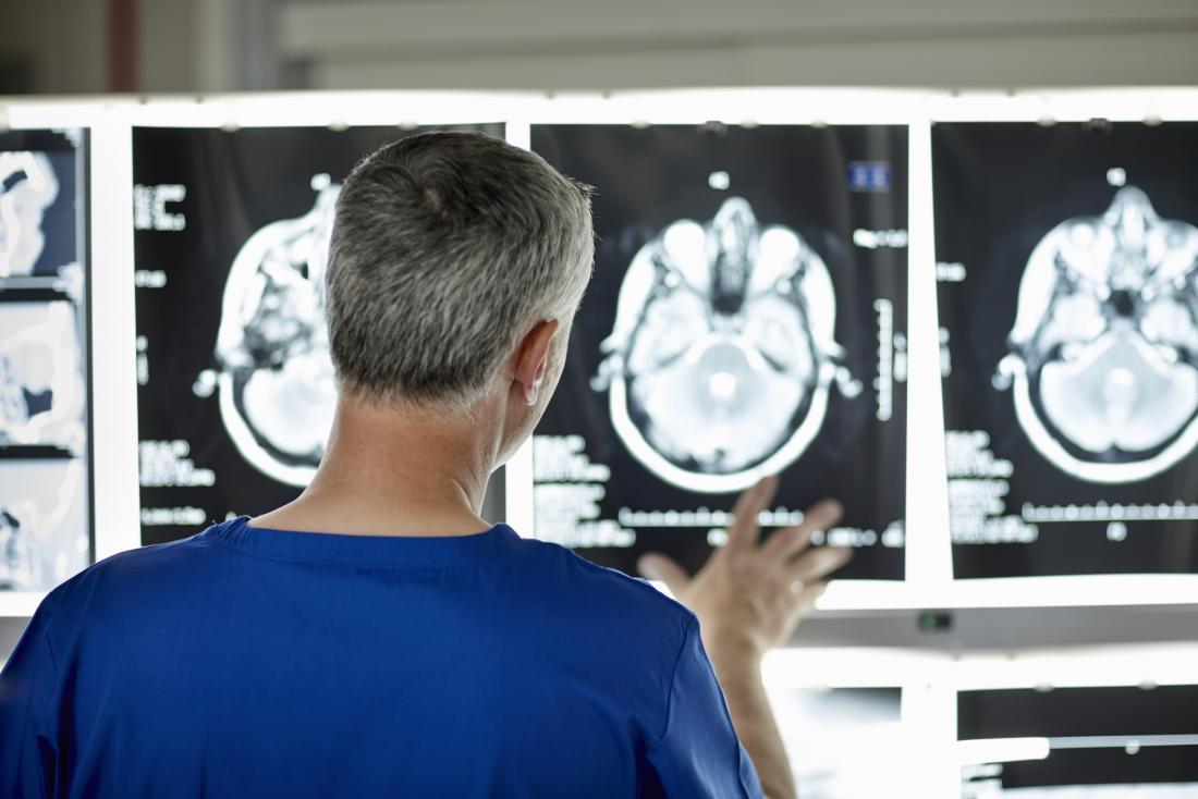 researcher assessing brain scan