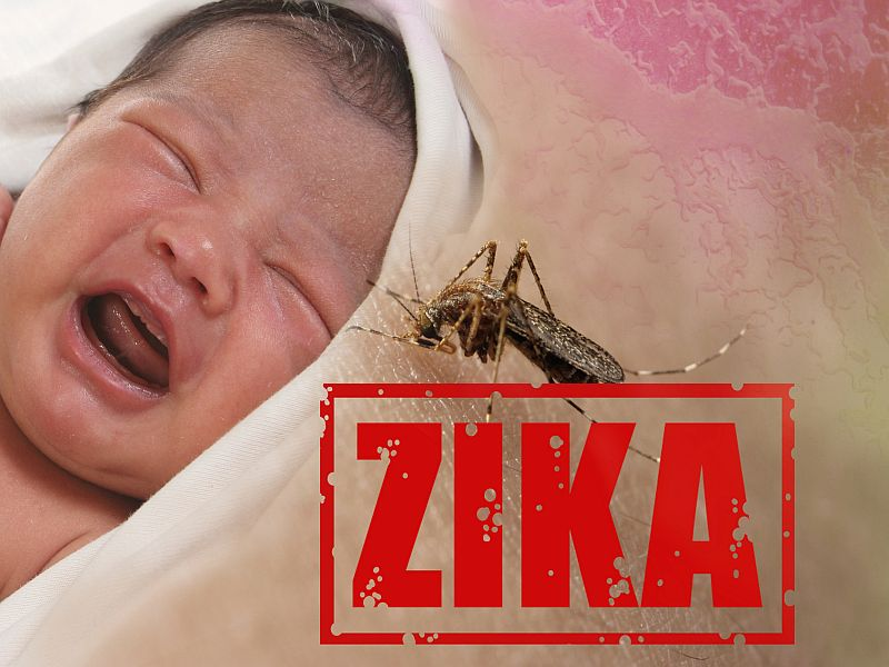 News Picture: Zika Damage Showing Up in Babies Deemed 'Normal' at Birth