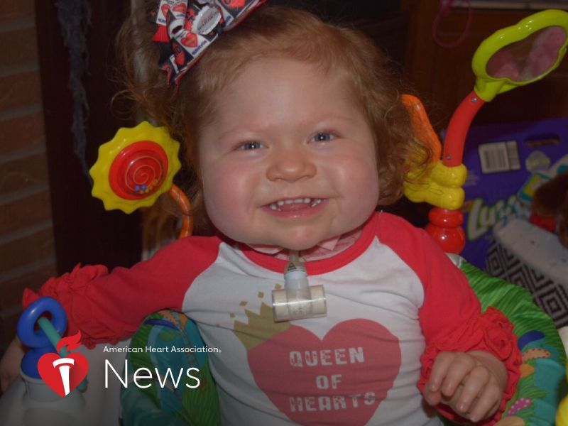 News Picture: AHA News: Baby Born With 'One-of-a-Kind' Heart Receives Transplant