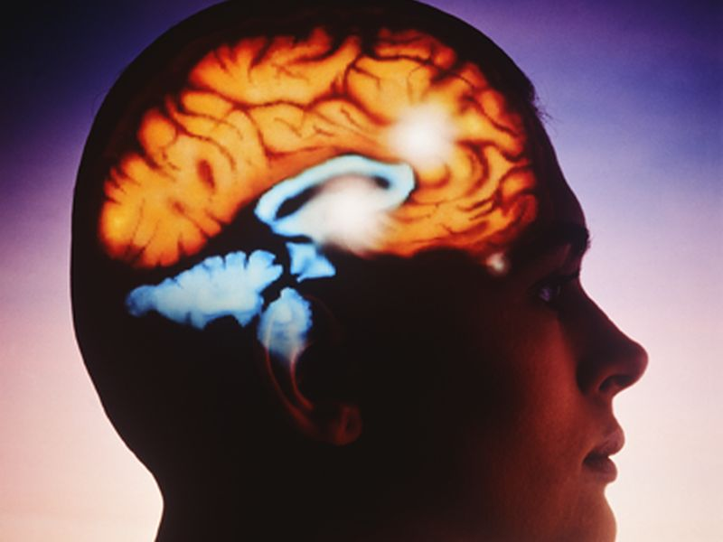 News Picture: Brain Stent Could Cut Odds for a Second Stroke