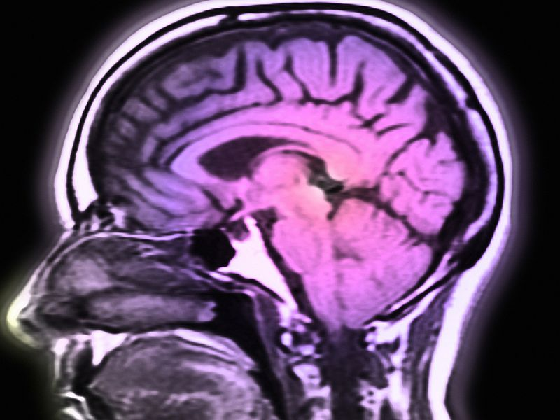 News Picture: In a First, Doctors Use Robotics to Treat Brain Aneurysm