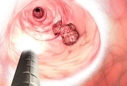 A lump or mass near the anus is a sign of anal cancer.