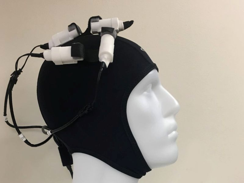 News Picture: Wearable 'Brain Stimulator' May Boost Stroke Recovery