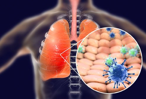 Infection with the Wuhan coronavirus causes respiratory problems.