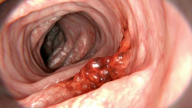 Bowel cancer: New biomarker may also boost treatment