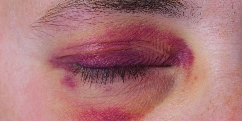 Broken eye socket: Symptoms, surgery, and recovery