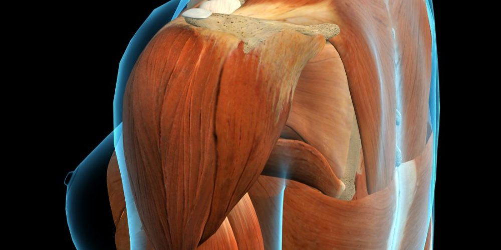 Deltoid pain: Types and treatment