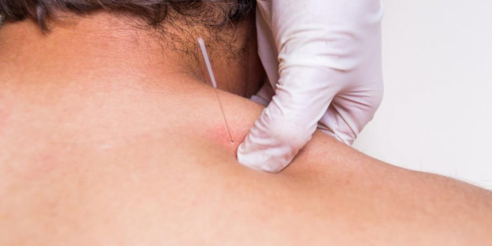 Dry needling vs. acupuncture: What the research says