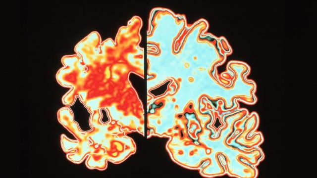Experimental drug may prevent Alzheimer's disease