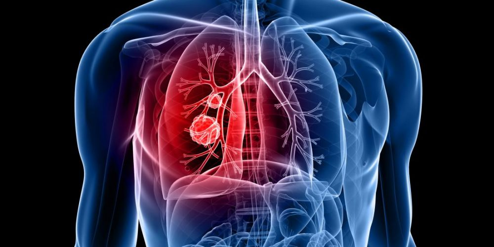 New protein may help to catch lung cancer early