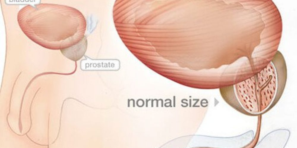 Prostate Problems Symptoms and Signs