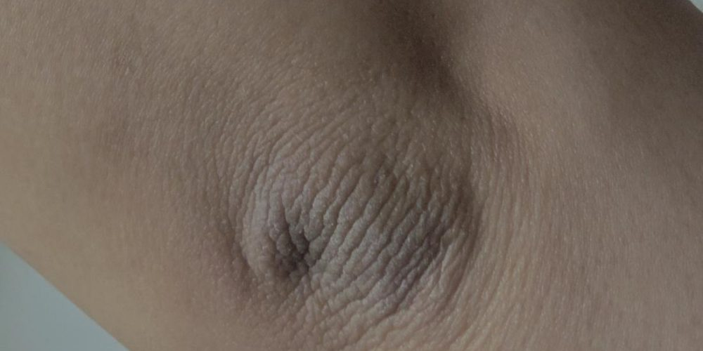 What to know about acanthosis nigricans