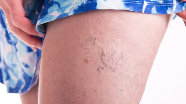 When to Treat Varicose Veins