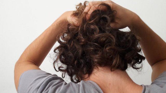 Does diabetes cause hair loss?
