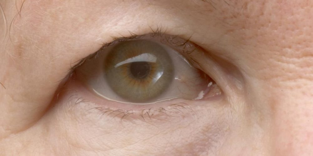 How do you treat a droopy eyelid?