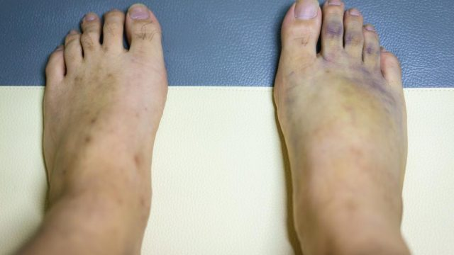What causes purple feet?