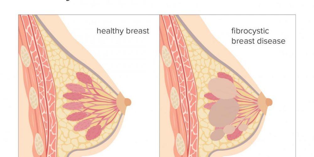 What is fibrocystic breast disease?
