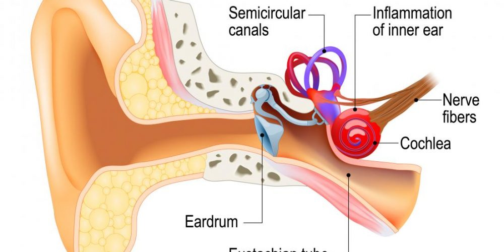 What is labyrinthitis?