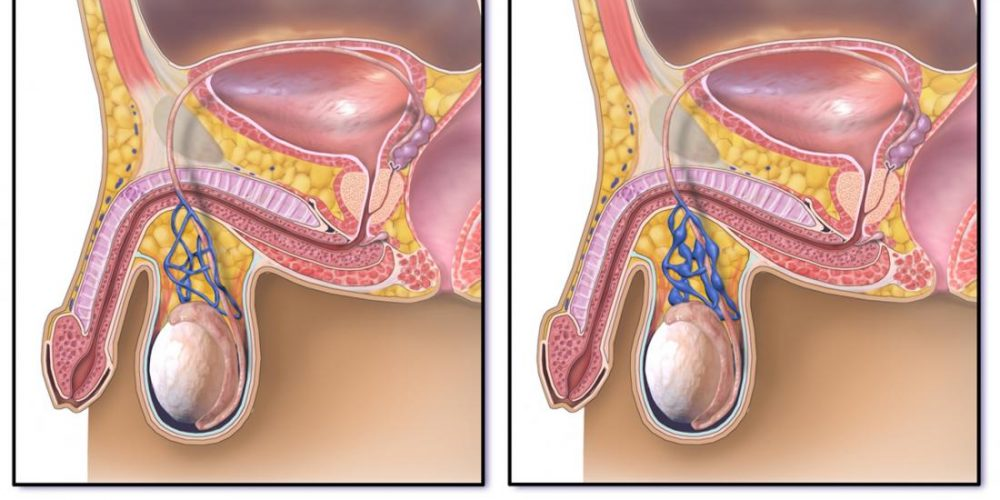 What is the link between varicocele and infertility?