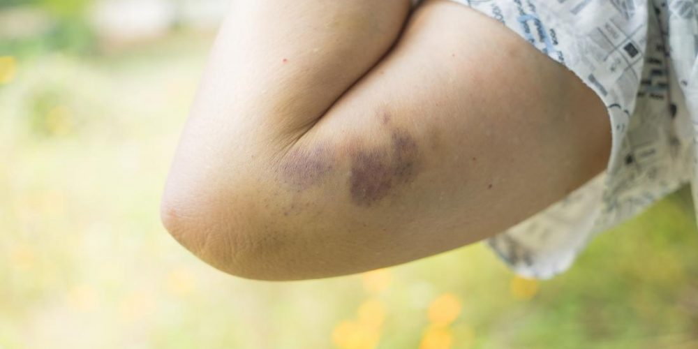 What to know about contusions