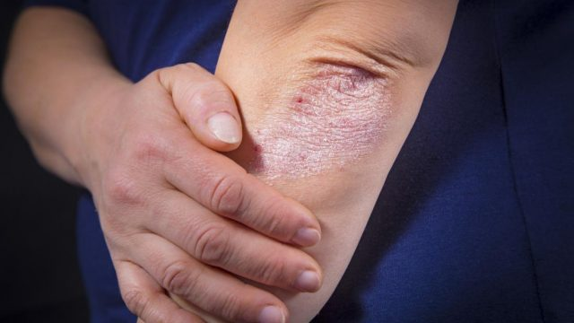 Why does psoriasis increase diabetes risk?