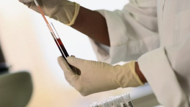 Blood Test to Diagnose Heart Attacks May Not Be Foolproof