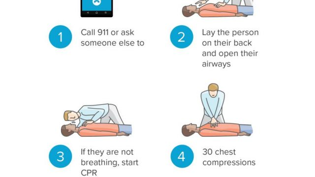 CPR steps: A visual guide