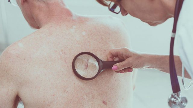 Laser probe detects deadly melanoma in seconds