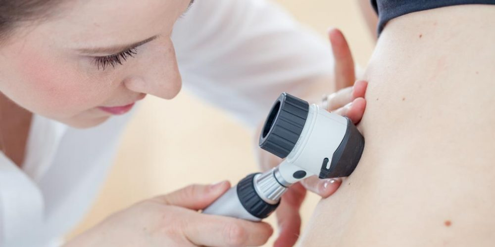 Melanoma mortality rates vary across the country