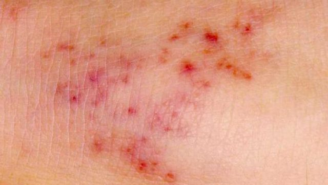 Meningitis rash: Pictures, symptoms, and test