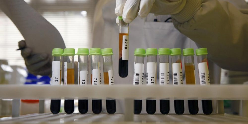 Blood tests for rheumatoid arthritis: What to know